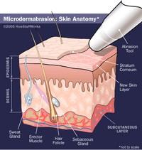 microdermabrasion-201.jpg